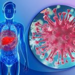 Tinh bột nghệ hỗ trợ điều trị bệnh ung thư như thế nào?